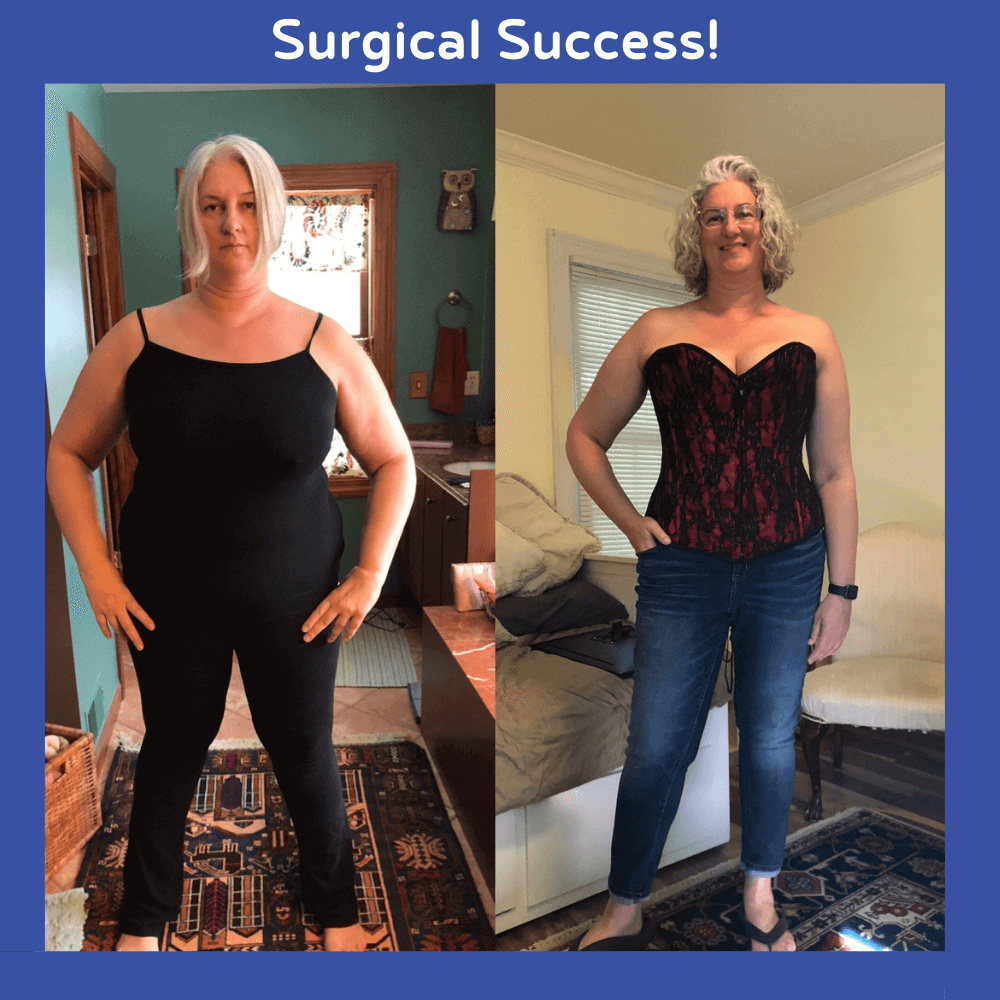 Surgical Success 2 - Jason Rizqallah before and after