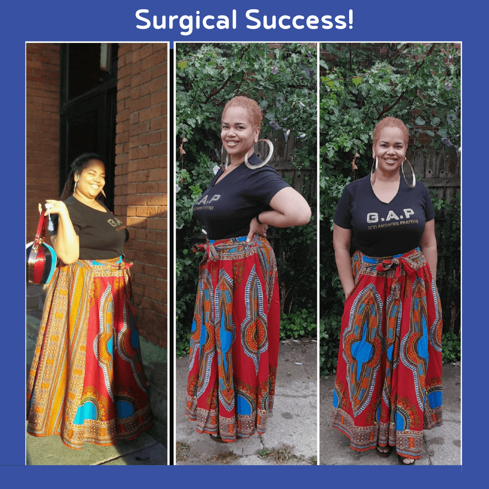Surgical Success 1 - Jason Rizqallah before and after