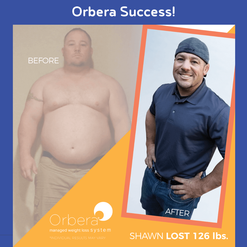 Orbera Success 3 - Jason Rizqallah before and after