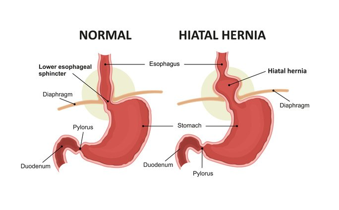 Hiatal hernia and normal anatomy of the stomach